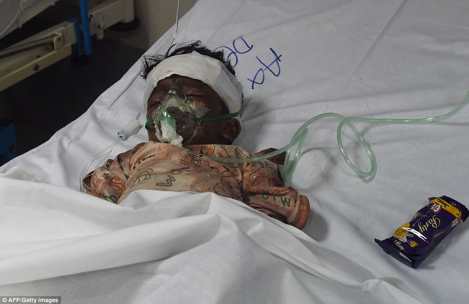 329B755C00000578-3511528-An_injured_Pakistani_child_victim_of_a_suicide_blast_rests_in_a_-a-7_1459151759239